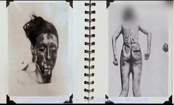 731部隊の人体実験写真2.png - ...